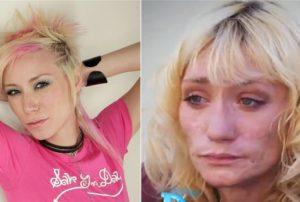Центр Здоровой Молодежи - Украина Модели которые попали в наркотическую зависимость