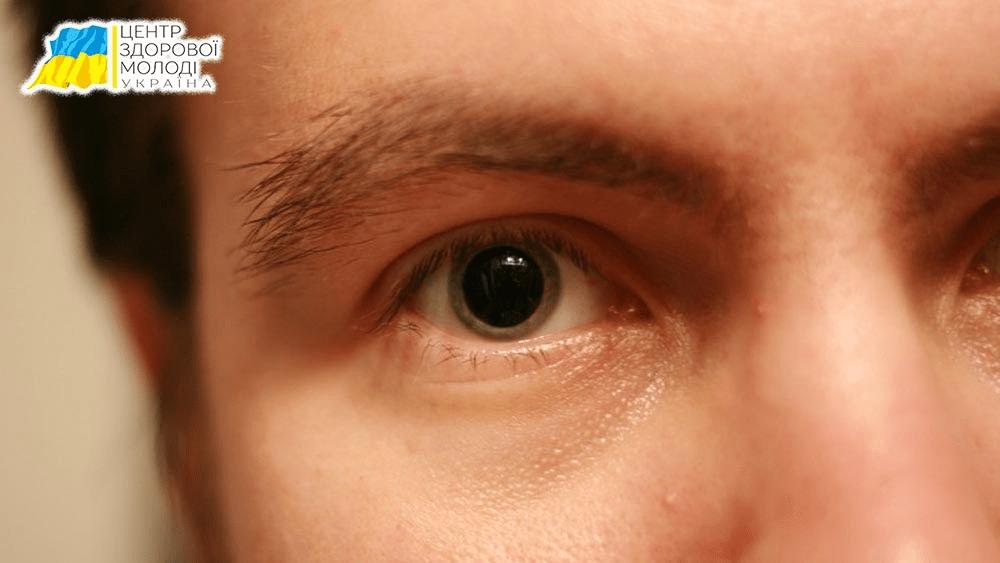 Центр Здоровой Молодежи - Украина Ознаки наркоманії – як швидко виявити та лікувати