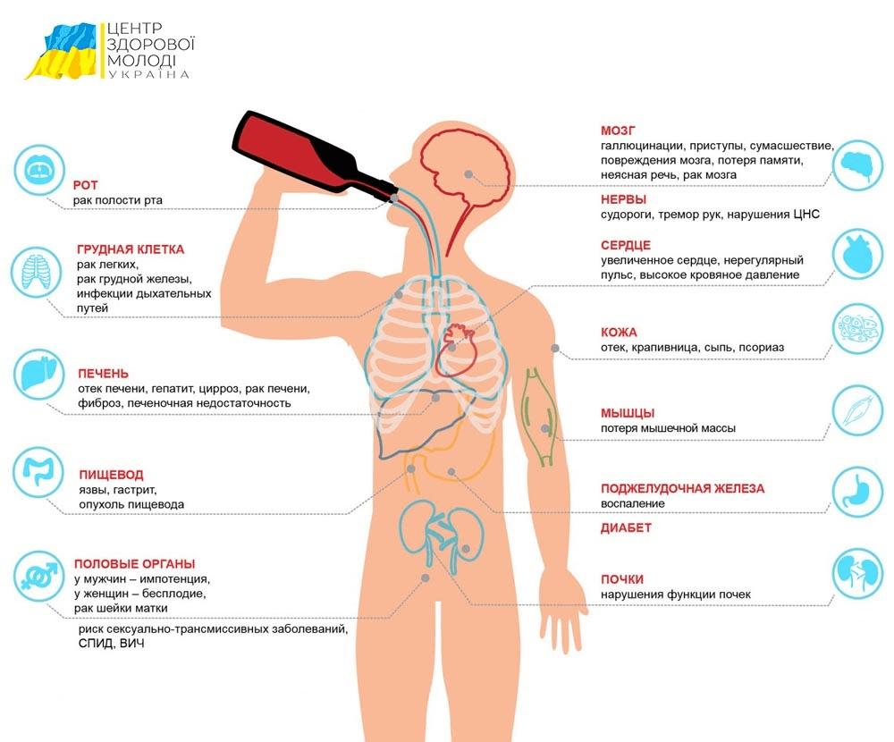 Центр Здоровой Молодежи - Украина Как вылечить алкоголизм без ведома больного?